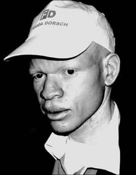 albino-con-gorrafd