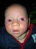 albino-despues