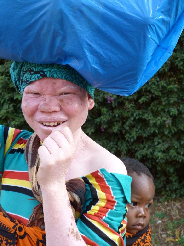 albinos-tanzania_madre-albina-y-bebe