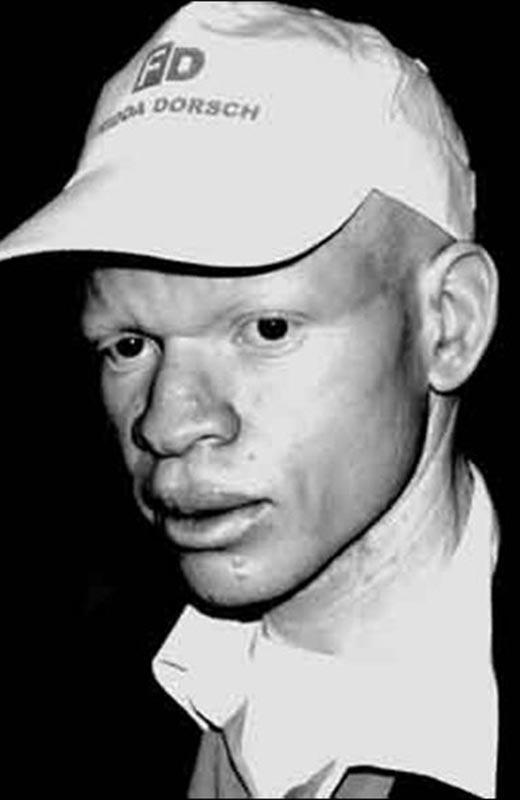 albino con gorra