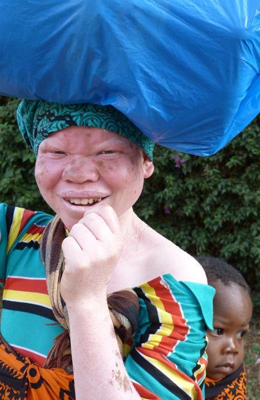 albinos fridda drosch