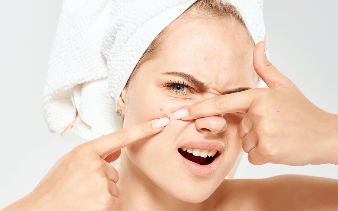 Adiós acné, el producto más efectivo es vegano y lleva niacidamina